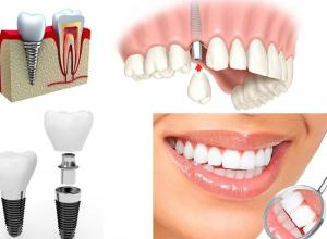 implante dental sp